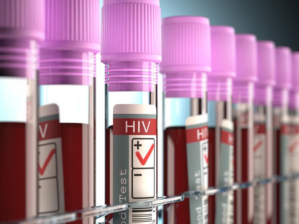 Hablemos de VIH